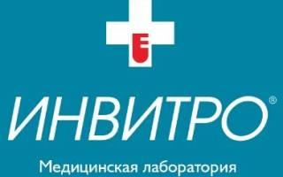 Как выбрать лучшую лабораторию для сдачи анализов в Москве